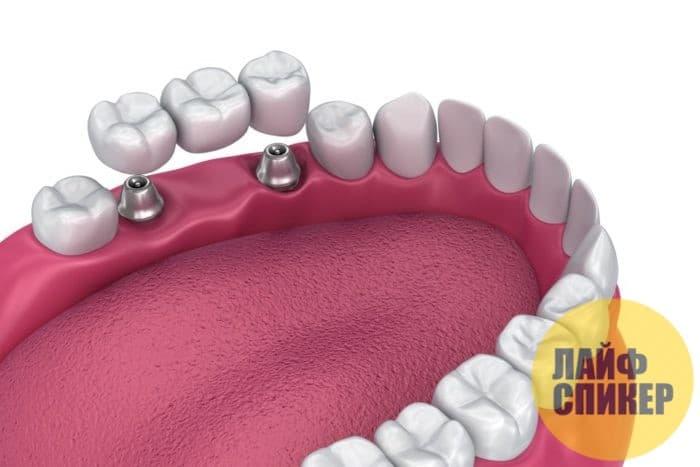 Виды зубных имплантов: какой лучше выбрать?