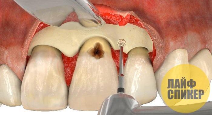 Причины развития и особенности течения кариеса цемента зуба