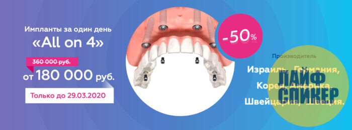 Современное протезирование зубов на имплантах